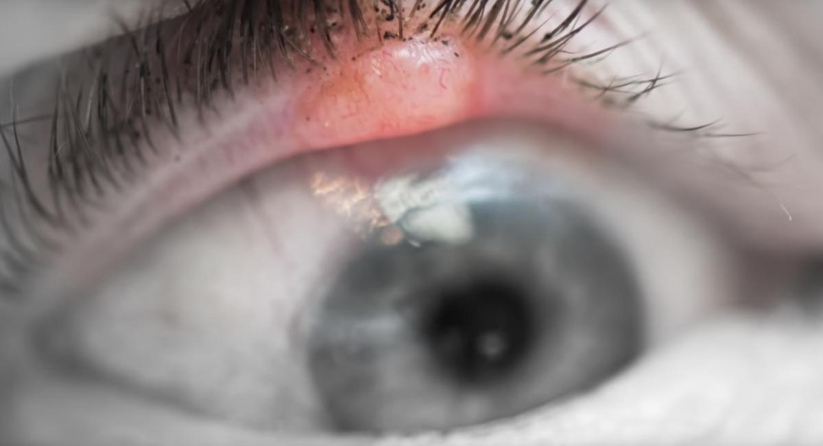 眼瞼腫瘤不能輕視,不但可以致盲還能夠致命