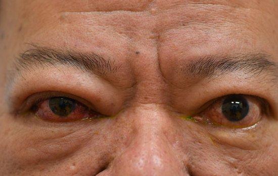 甲狀腺功能失調可影響眼睛(俗稱甲狀腺上眼)。患者可能出現眼皮紅腫上揚、眼凸、重影