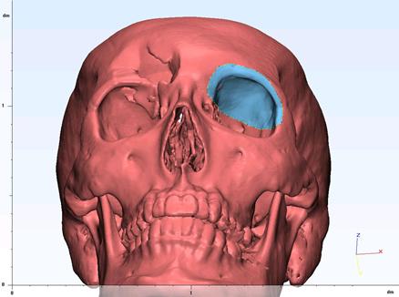 眼窩 骨折