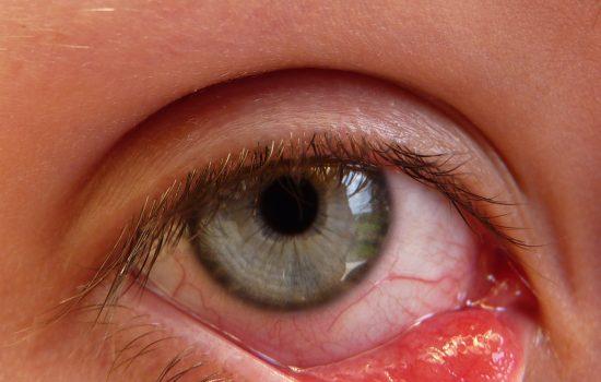 瞼板腺功能障礙容易導致眼瘡