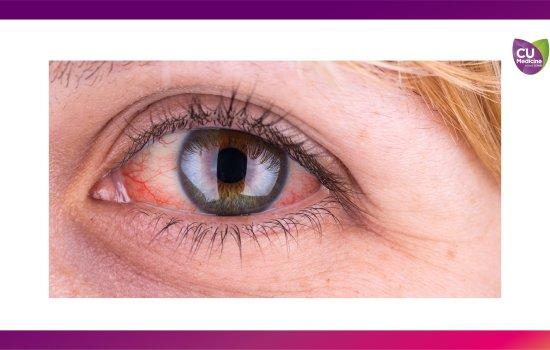 葡萄膜炎可致多種眼疾