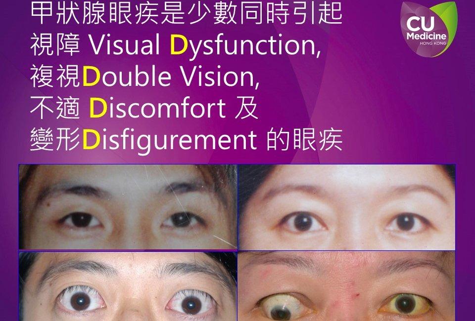 甲狀腺眼疾