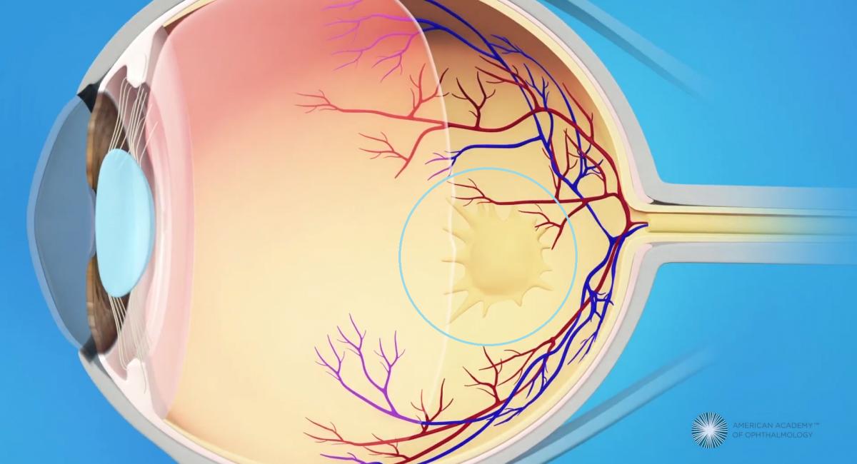 黃斑前膜便是一塊生在黃斑點上面的薄膜組織。隨著時間,薄膜組織的加厚及收縮會引起黃斑點的皺褶,而導致視覺扭曲。