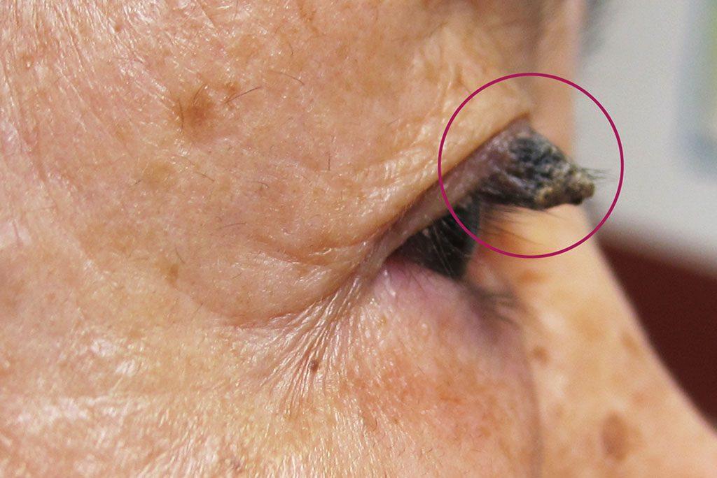 老人斑,學名為「脂漏性角化症」,是長者最常見的良性皮膚腫瘤