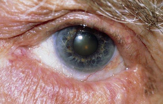 眼瞼內翻是指眼瞼邊緣向內翻捲,導致睫毛不停地與角膜和結膜產生磨擦