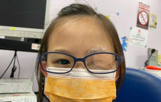 治療弱視的傳統方法有遮眼。透過用眼貼遮蓋正常視力的眼睛,强迫小朋友多使用弱視眼睛從而刺激發育。